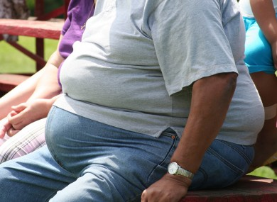 Cars, computers, TVs spark obeSity in developing countries