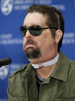 Face transplant recipient Dallas Wiens, of Fort Worth, Texas, takes questions from members of the media during a news conference at Brigham And Women's Hospital, in Boston.