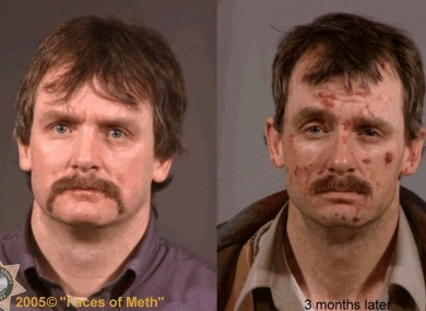 Faces of Crystal Meth